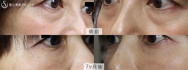 症例写真 プレミアムPRP皮膚再生療法