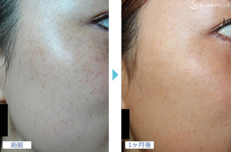 症例写真 術前術後比較 美容皮膚科 シミ・そばかす