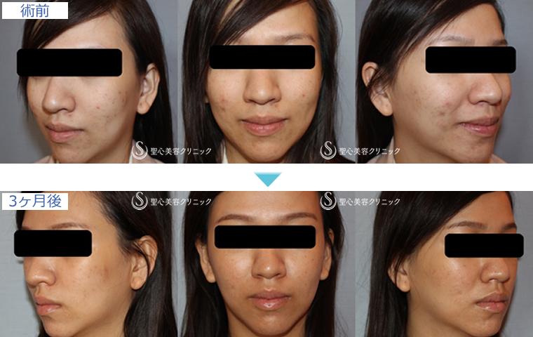 症例写真 術前術後比較 美容皮膚科 美肌