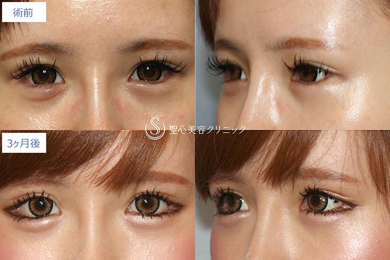 大きく 目 整形 目を大きくする整形。切らないでデカ目にする方法|東京新宿の美容整形ならもとび美容外科クリニック