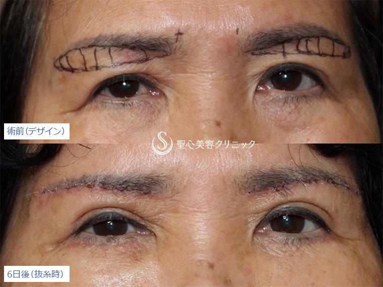 症例写真 術前後比較 目のくま・くぼみ・たるみ・眼瞼下垂