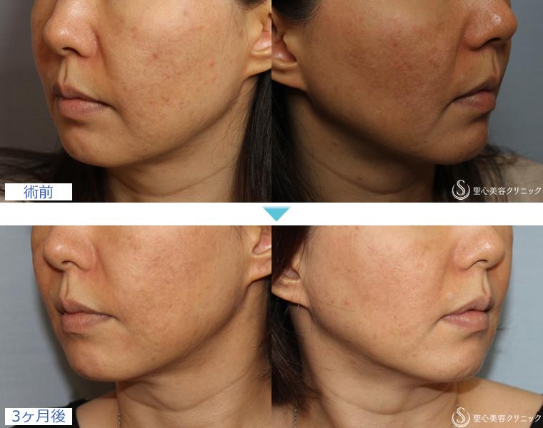 症例写真 術前術後比較 美容皮膚科 ニキビ・ニキビ跡