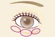 経結膜下脱脂法(目の下の脂肪取り)