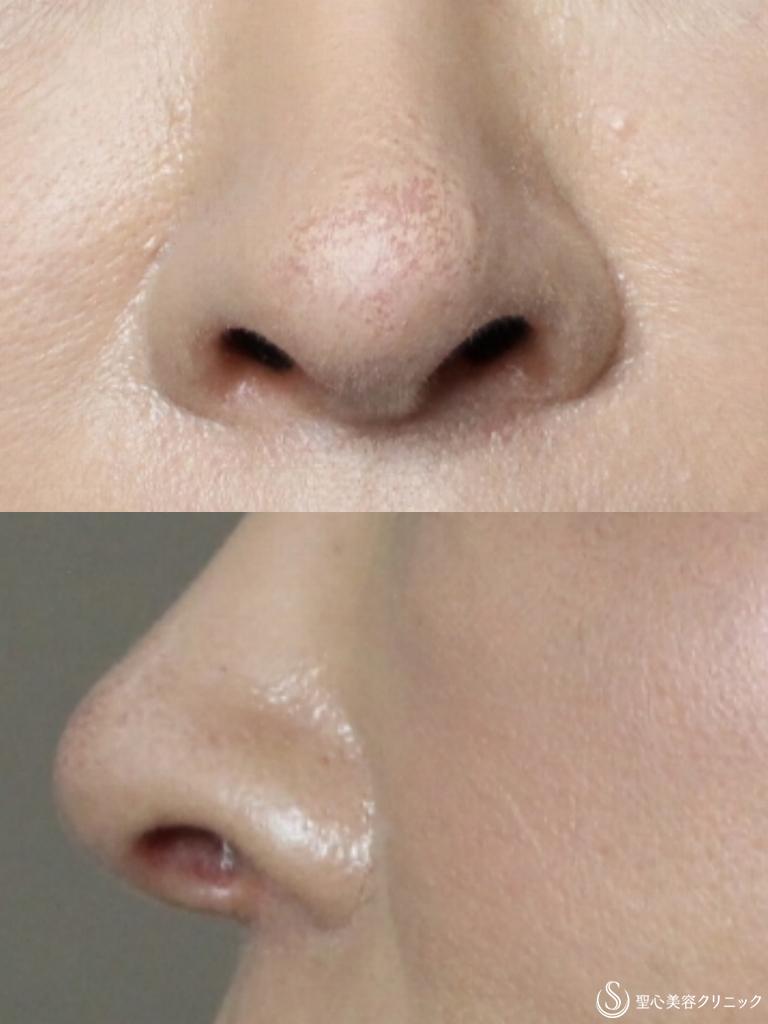 症例写真 術後 鼻孔縁下降術+鼻先耳介軟骨移植