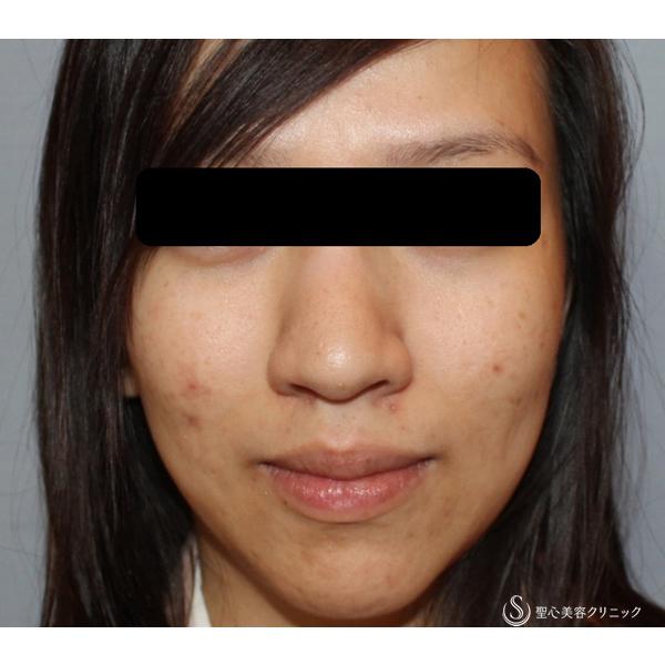 症例写真 術前 美容皮膚科 美肌
