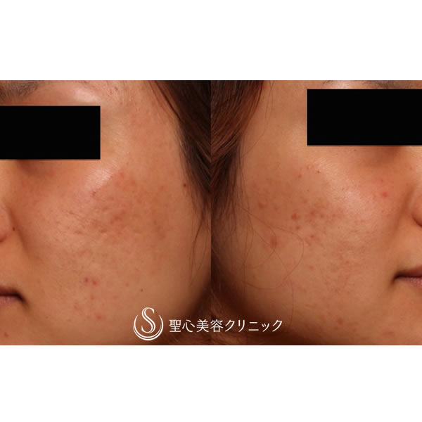 症例写真 術後 美容皮膚科 ニキビ跡