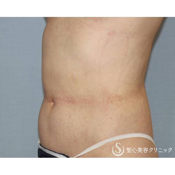 症例写真 術後 脂肪吸引 腹部