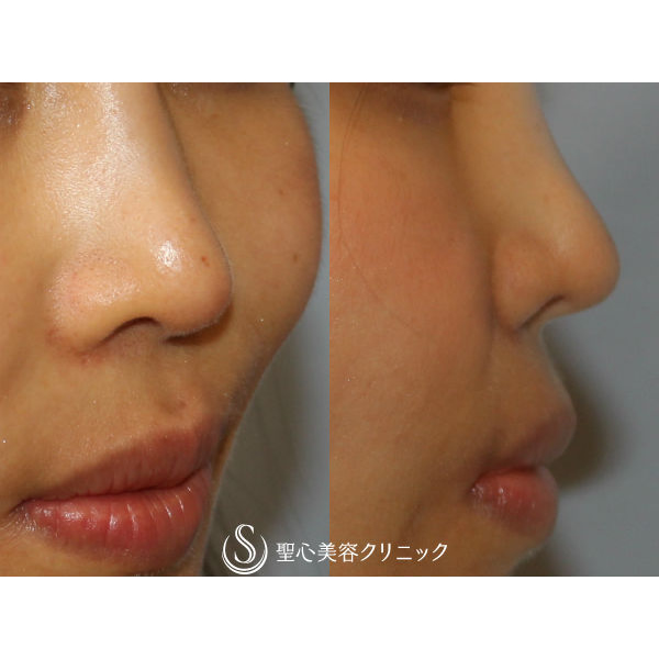 症例写真 術後 鼻の整形