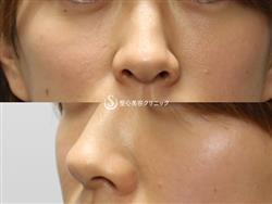 症例写真 術後 プレミアムPRP皮膚再生療法
