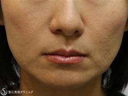 症例写真 術後 プレミアムPRP皮膚再生療法 3ヵ月後