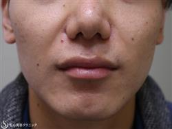 症例写真 術前 鼻尖縮小 小鼻縮小