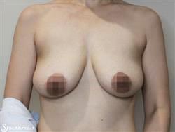 症例写真 術前 乳房吊り上げ術