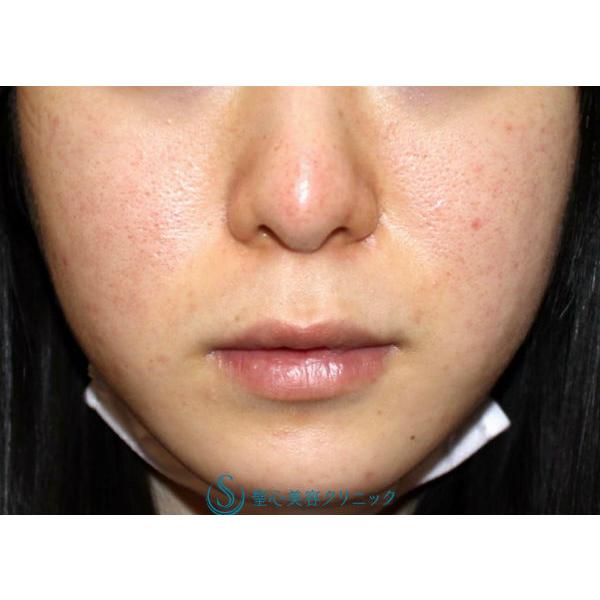 症例写真 術後 美容皮膚科 ニキビ・ニキビ跡・毛穴