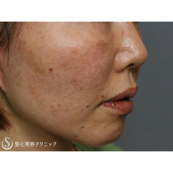 症例写真 術後 美容皮膚科 シミ・くすみ・毛穴