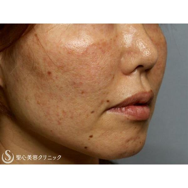 症例写真 術前 美容皮膚科 シミ・くすみ・毛穴