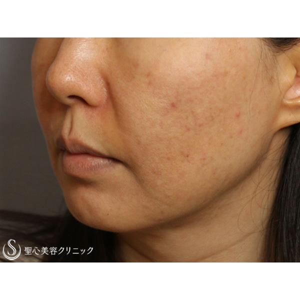 症例写真 術前 美容皮膚科 ニキビ・ニキビ跡