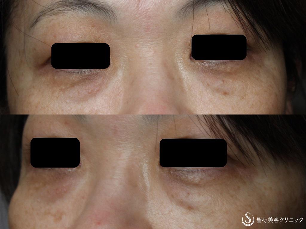症例写真 術前 経結膜下脱脂法+プレミアムPRP皮膚再生療法