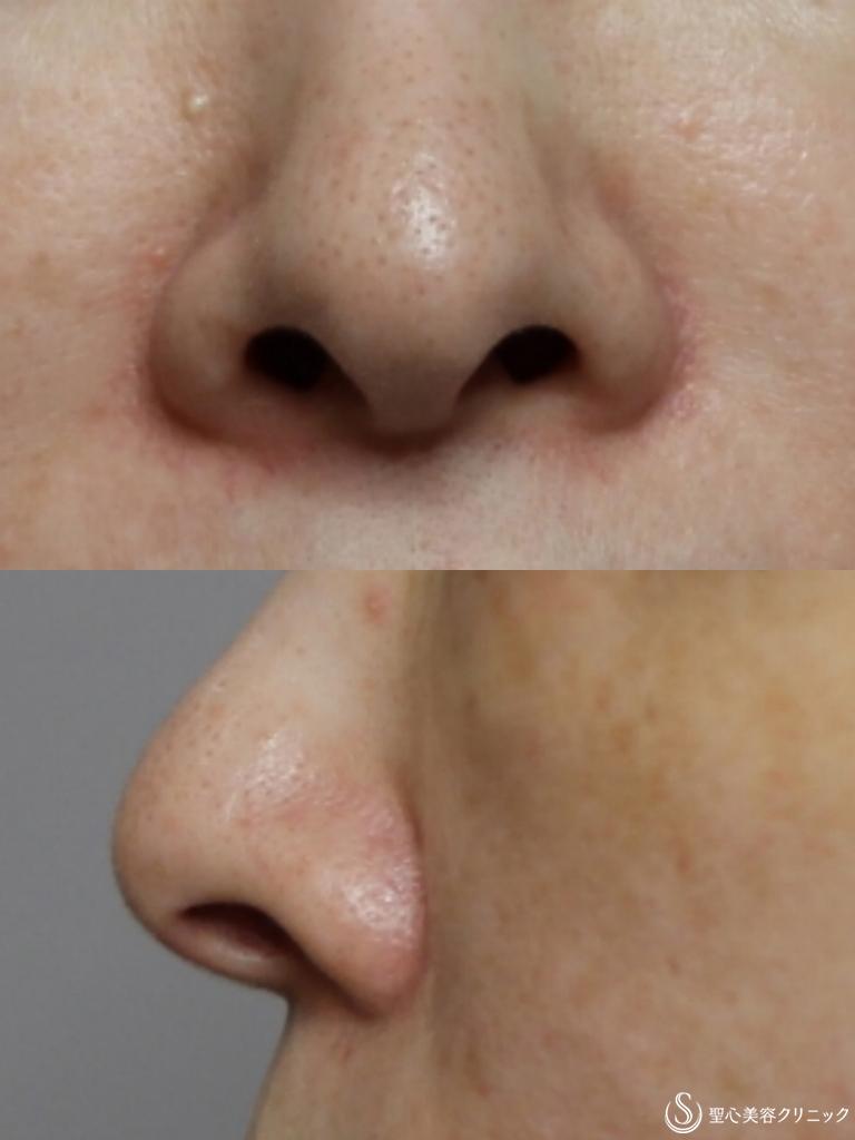 症例写真 術前 鼻孔縁下降術+鼻先耳介軟骨移植