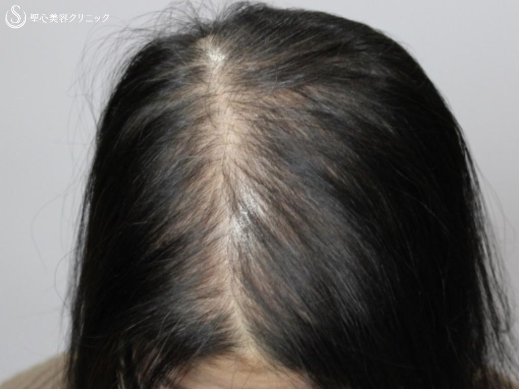 症例写真 術後 毛髪複合治療