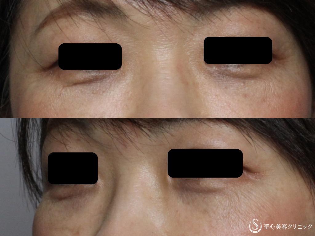 症例写真 術後 経結膜下脱脂法+プレミアムPRP皮膚再生療法