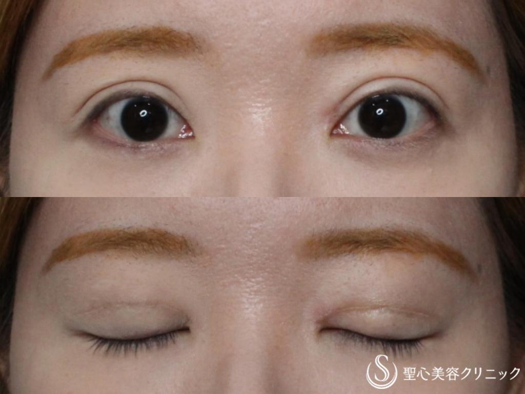 症例写真 術後 重瞼線部分開法、目頭切開