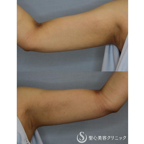 症例写真 術後 脂肪吸引 二の腕