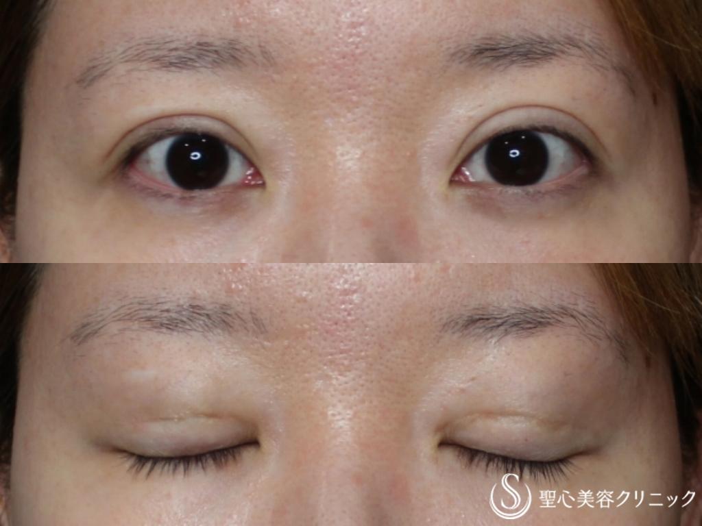 症例写真 術前 重瞼線部分開法、目頭切開