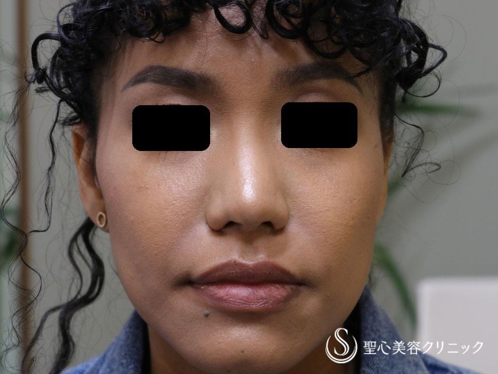 症例写真 術後 小鼻縮小術+鼻尖縮小術