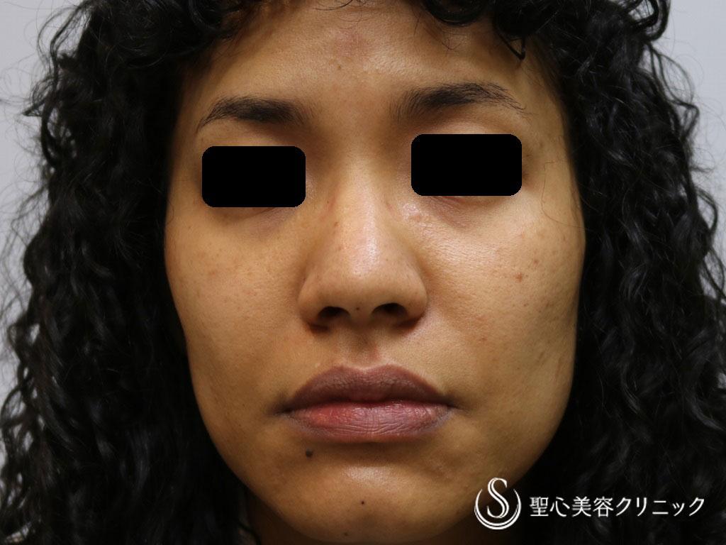 症例写真 術前 小鼻縮小術+鼻尖縮小術