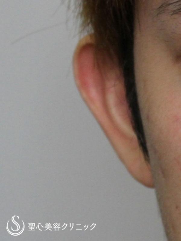 症例写真 術前 立ち耳修正(埋没法)