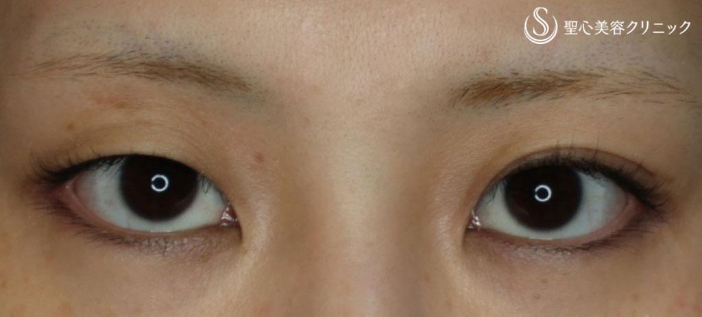 症例写真 術前 マイクロメソッド+α(二点留め)
