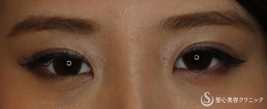 症例写真 術後 マイクロメソッド+α(二点止め)