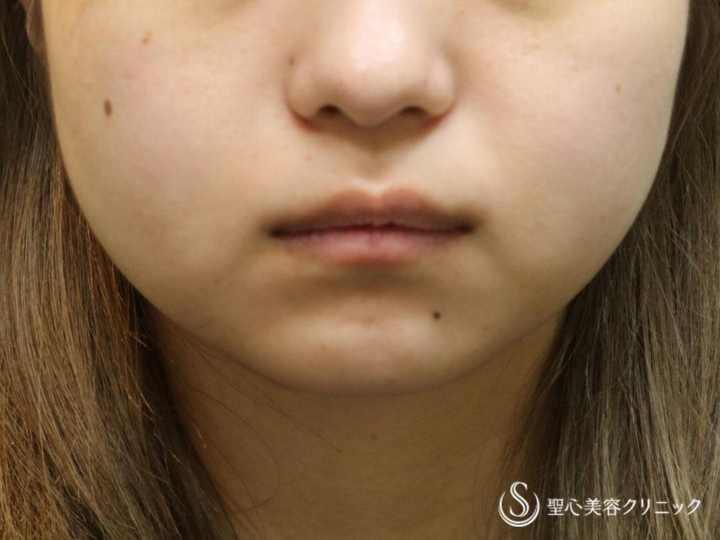 症例写真 術前 頬のベイザー脂肪吸引