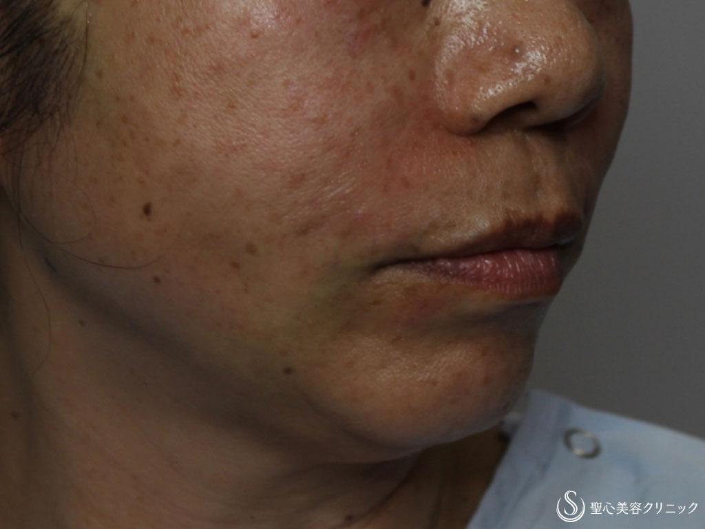 症例写真 術後 プレミアムPRP皮膚再生療法、アンカーコーン