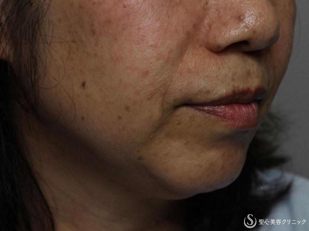 症例写真 術前 プレミアムPRP皮膚再生療法、アンカーコーン