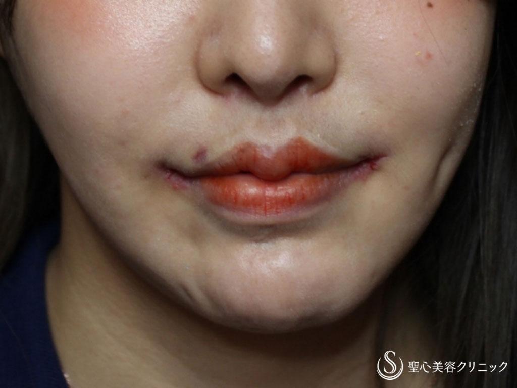 症例写真 術後 口角挙上術