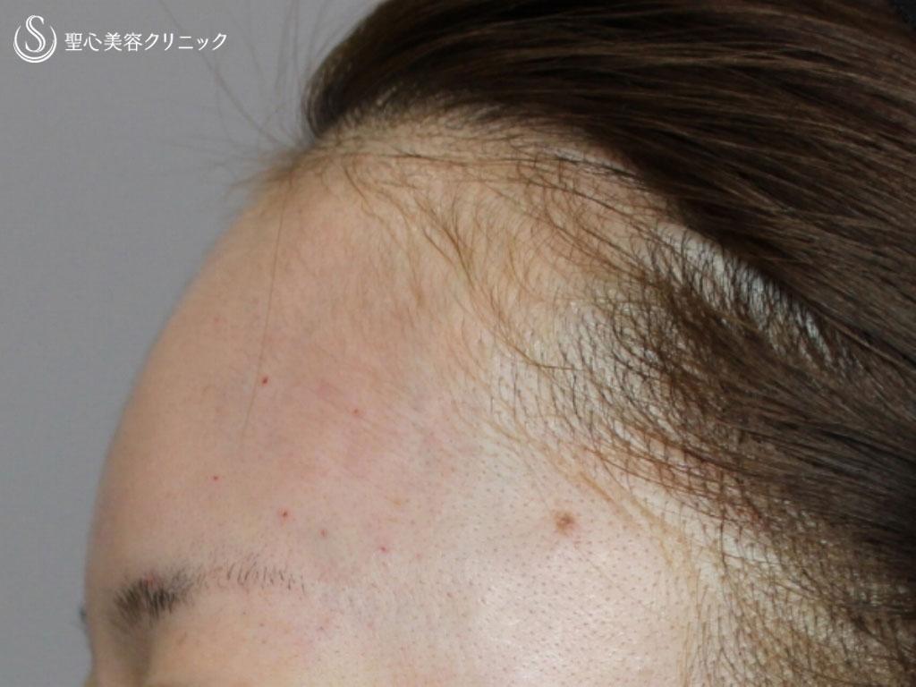 症例写真 術後 額のヒアルロン酸注入