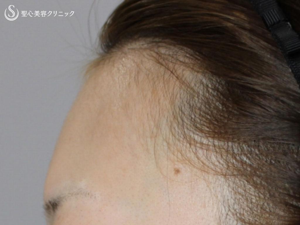 症例写真 術前 額のヒアルロン酸注入
