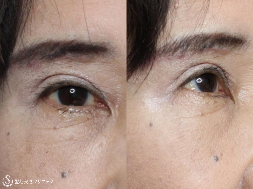 症例写真 術後 眉下切開法+プレミアムPRP皮膚再生療法
