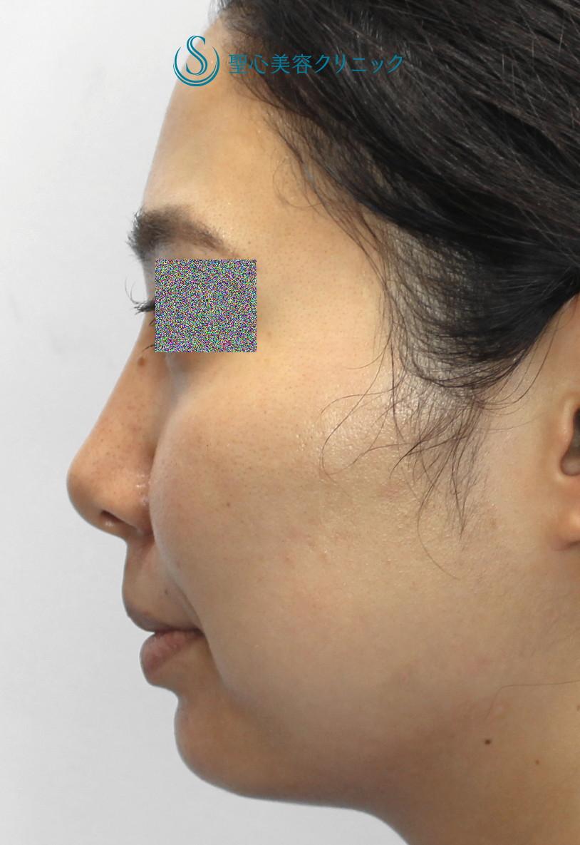 症例写真 術後 プロテーゼによる隆鼻術