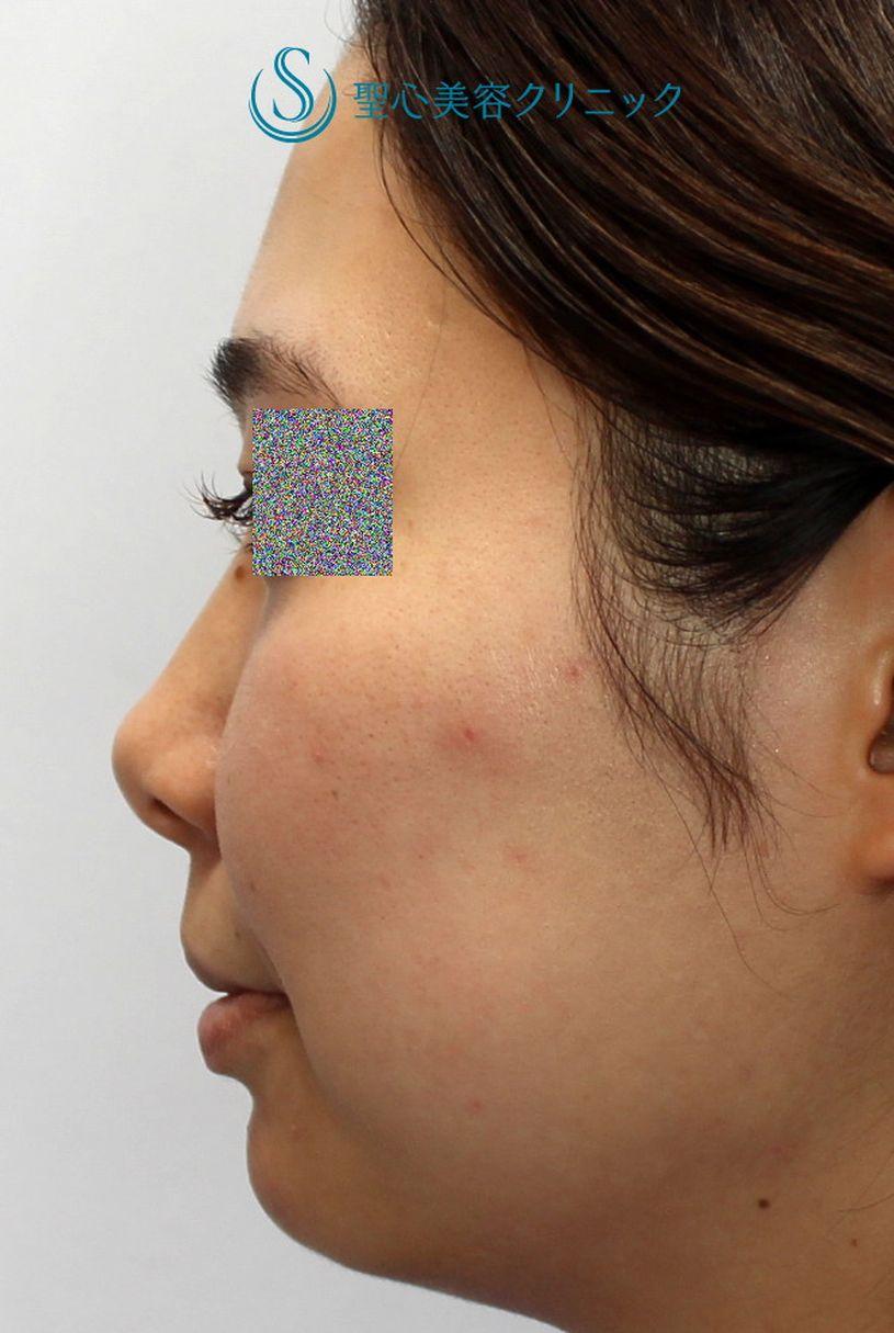 症例写真 術前 プロテーゼによる隆鼻術