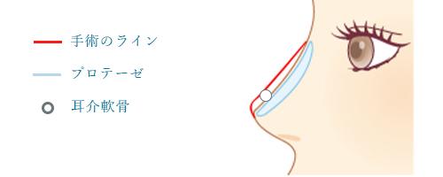 鼻プロテーゼ × 鼻尖形成(耳介軟骨移植)
